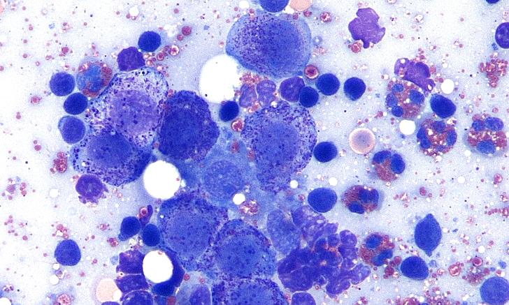 Image Gallery: Lymph Node Cytology