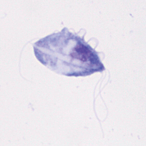 Microscopic image of a single feline T foetus organism (100× objective). Characteristic features of T foetus—including a dorsal undulating membrane, 3 anterior flagella, and a posterior flagellum—can be observed.