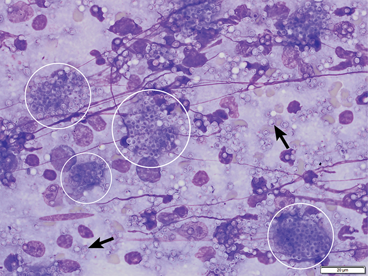 Bone marrow aspirate from a cat with pancytopenia. The numerous yeast organisms seen both extracellularly (arrows) and intracellularly within macrophages (circles) measure 2 to 4 µm in diameter and have a thin outer halo with eccentrically placed, basophilic, crescent-shaped nuclei. Organisms are consistent with H capsulatum. Modified Wright's stain, 1000×. Scale bar = 20 microns