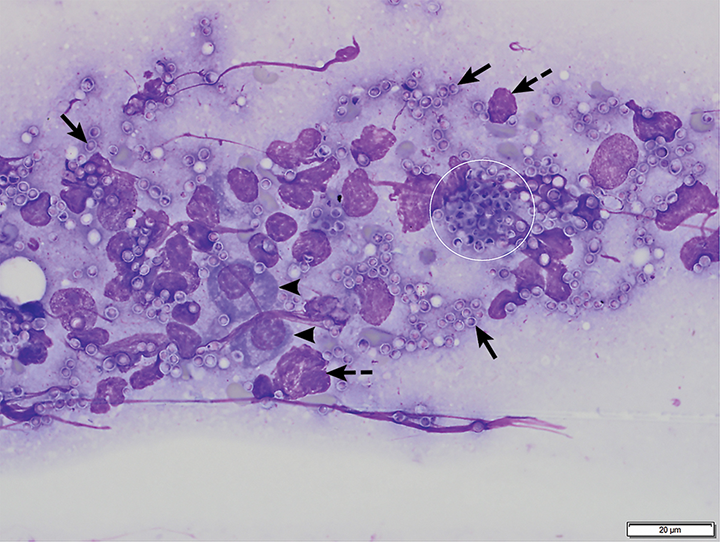 Bone marrow aspirate from a cat with pancytopenia. H capsulatum yeast structures are seen extracellularly (arrows) and intracellularly within a macrophage (circle). Plasma cells (arrowheads) and nuclear material from lysed cells (dashed arrows) are also present. Modified Wright's stain, 1000×. Scale bar = 20 microns