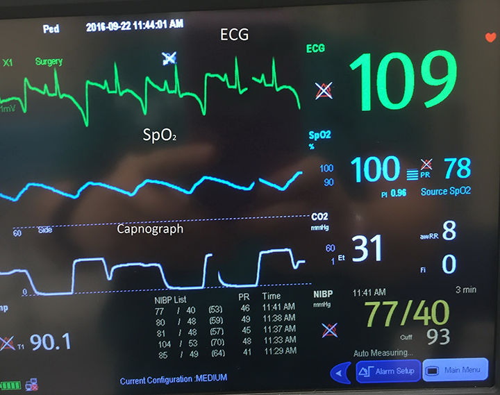 Anesthetic Monitoring: Interpreting the Readings | Clinician's Brief