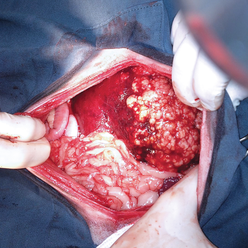 Hepatic alveolar echinococcosis in exploratory laparotomy of a dog. All but one lobe of the liver was affected by raised white nodules, which are visible on the right side of the image. Photo courtesy of Audrey Tataryn, DVM