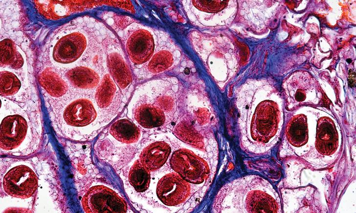 паразиты в легких человека симптомы фото