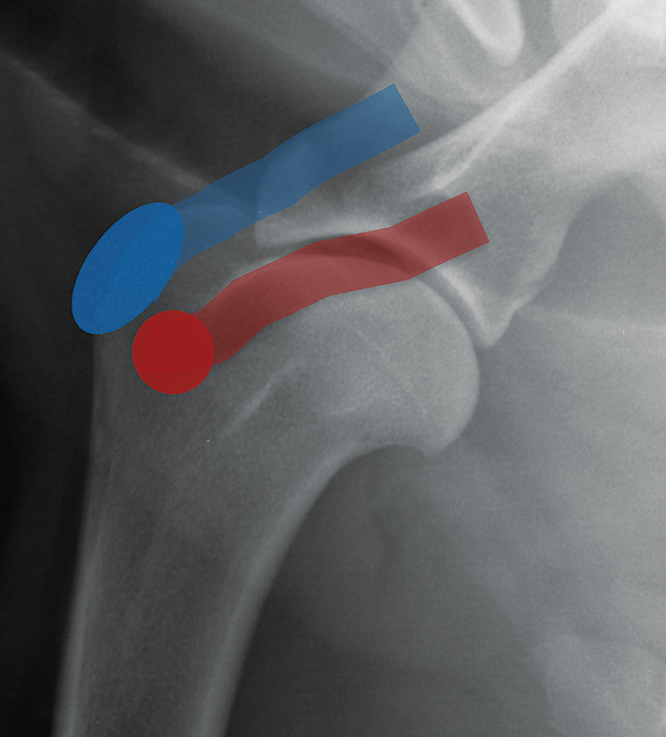 Lateral radiograph of a normal shoulder showing the supraspinatus insertion (blue oval) and tendon course (blue bar) as well as the infraspinatus insertion (red circle) and tendon course (red bar)