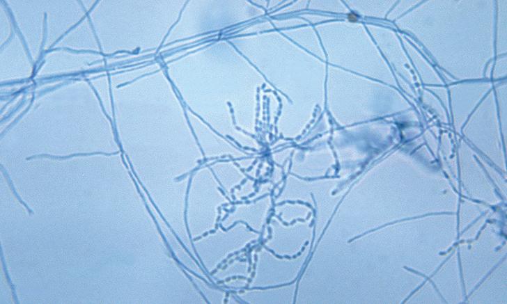 <em>Actinomyces</em> spp & <em>Nocardia</em> spp