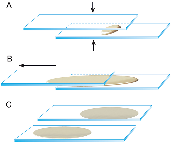 Illustration of the squash, or compression, technique. (A) Once the cellular material is ejected onto the slide, a second spreader slide is gently placed over the first slide at a 180-degree angle. (B) Use the weight of the slide to compress the material, then immediately and smoothly pull the slides in opposite directions to move the sample away from the frosted ends of the slides. The slides must remain flat and parallel as they are pulled apart to ensure even spreading of cells. (C) This technique provides 2 slides that are sufficiently cellular for staining and interpretation. Reproduced with the permission of The Ohio State University
