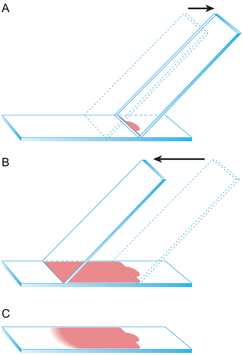 Illustration of the direct smear technique. (A) Apply a small drop of fluid 1 cm from the frosted end of the slide. Gently slide back a second spreader slide toward the fluid drop so that the fluid spreads along the spreader slide edge. (B) Gently advance the spreader slide smoothly and quickly at an approximately 45-degree angle along the slide to create a smear. (C) An appropriately prepared fluid cytology sample will appear similar to this image with a visible feathered edge. Be sure not to run the sample off the end of the slide. Reproduced with the permission of The Ohio State University