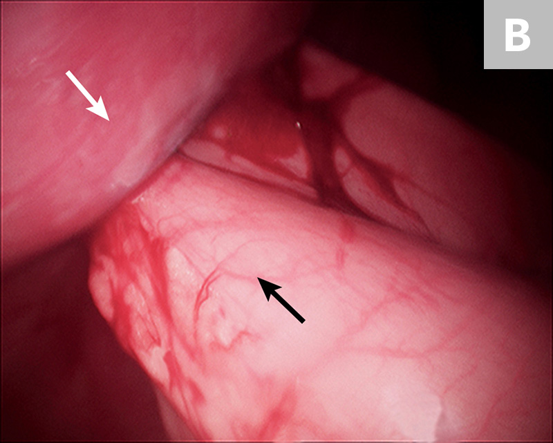10-mm Babcock forceps grasping the pyloric antrum during a laparoscopic-assisted gastropexy (A) and completed gastropexy with the pyloric antrum (black arrow) sutured to the right lateral abdominal wall (B; white arrow)