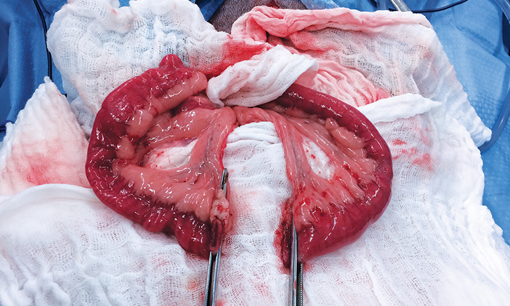 Linear-Stapled Gastrointestinal Anastomosis