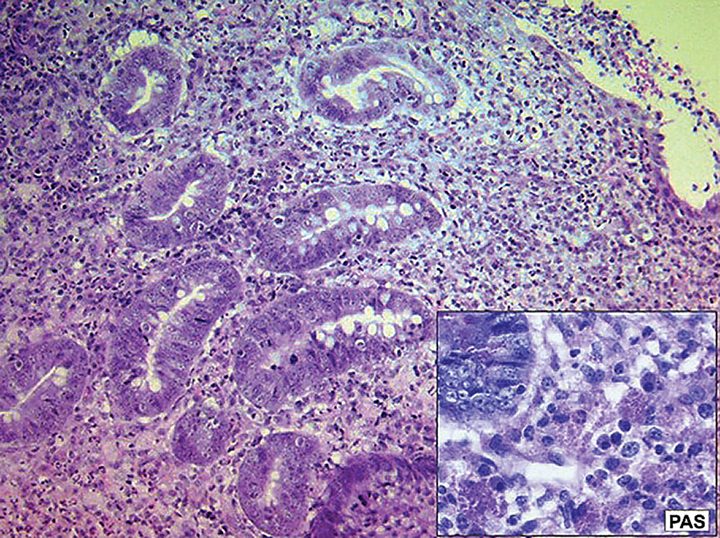 Histopathology and Periodic Acid-Schiff (PAS) stain of a sample obtained from a dog with histiocytic ulcerative colitis