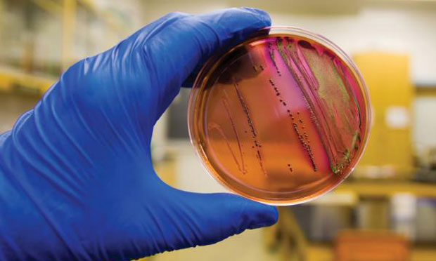 Managing the E coli UTI