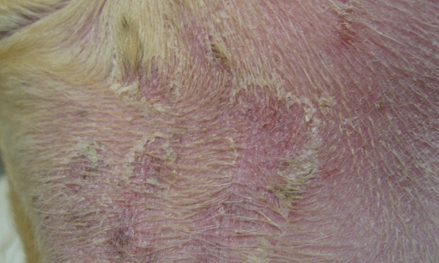 Scaling & Crusting Skin Disease