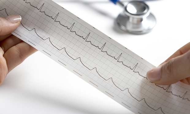 Interpreting ECGs with Confidence: Part 1