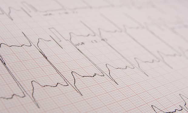 Common Cardiac Arrhythmias