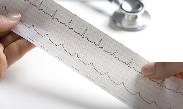 ECG Case Review