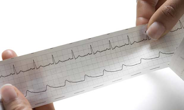 Interpreting ECGs with Confidence: Part 2
