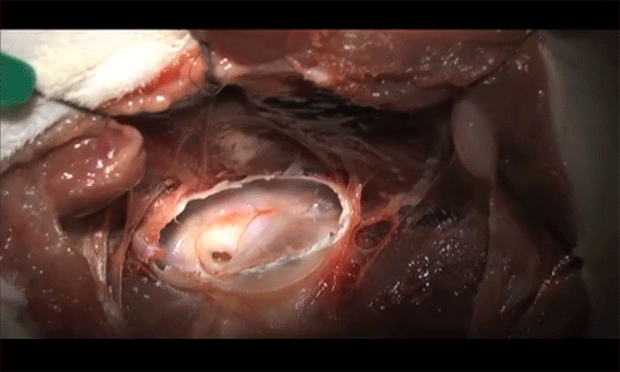 Video: Ventral Bulla Osteotomy in a Cat
