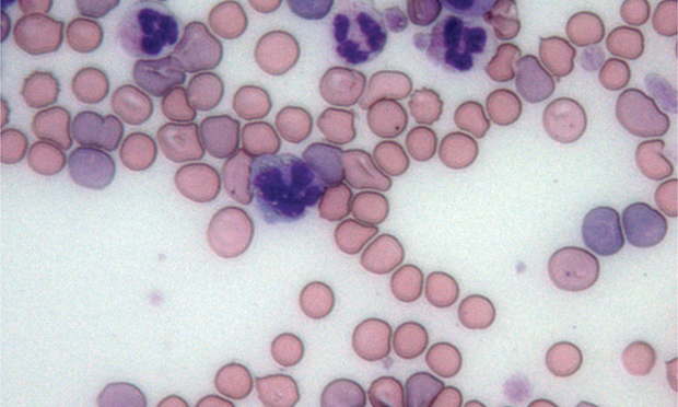Canine Immune-Mediated Hemolytic Anemia
