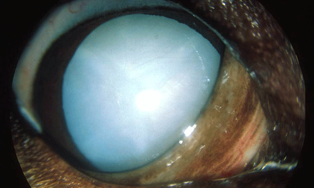 Image Gallery: Cataracts