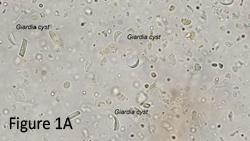 a giardiasis cisztás formája hogyan lehet meggyógyítani a felnőtt férgeket