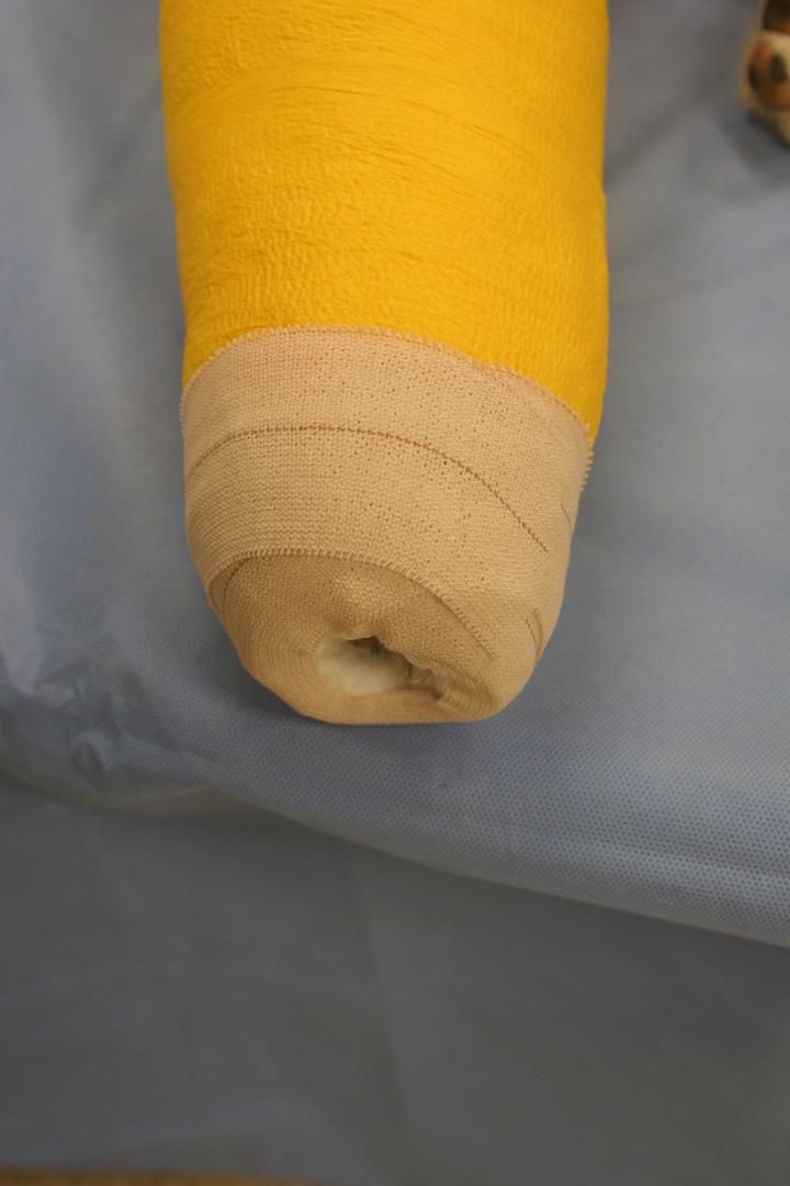 Robert Jones Bandage Clinician S Brief