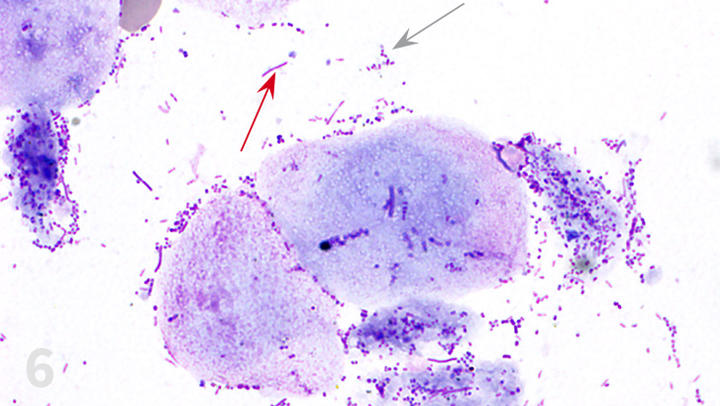 Image Gallery Ear Cytology Clinician S Brief