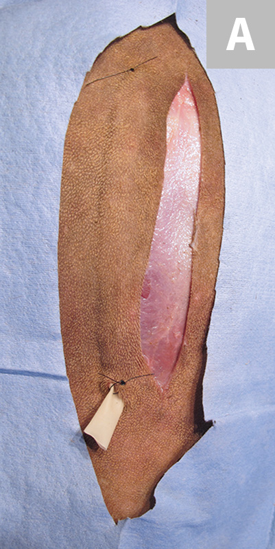 Wound Drain Placement | Clinician's Brief