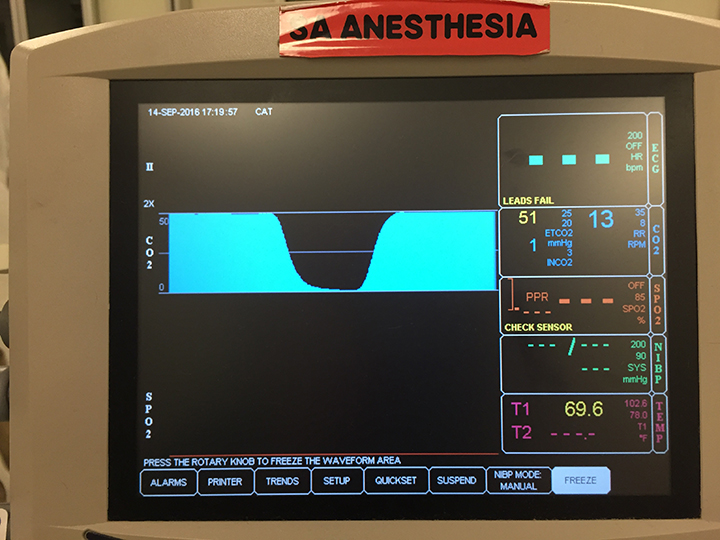 Image Gallery: Capnography | Clinician's Brief