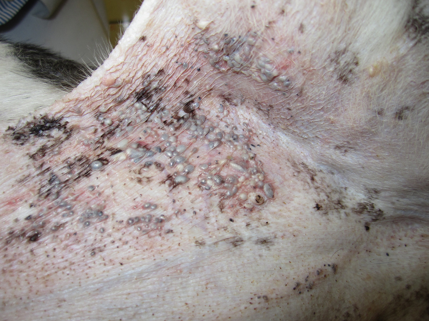 Image Gallery: Common Skin Masses | Clinician's Brief