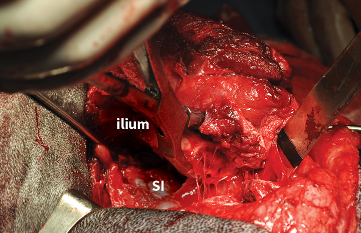Intraoperative image of iliectomy. The osteotomized ilium is grasped with bone-holding forceps after disarticulation of the sacroiliac joint. The exposed left sacroiliac joint is visible at the level of the sacrum (SI).